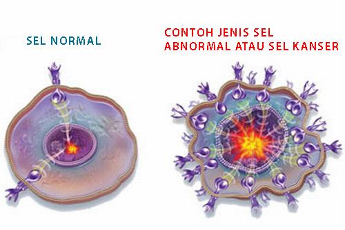 Gambar-Sel-kanser-dan-sel-normal