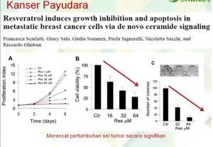 kajian-klinikal-vivix-penawar-kanser-payudara