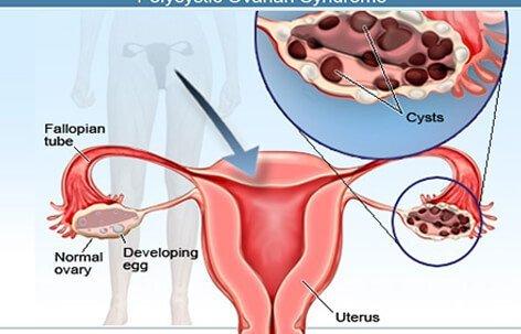 ovarian-cysts-s3-cysts-vivix-shaklee